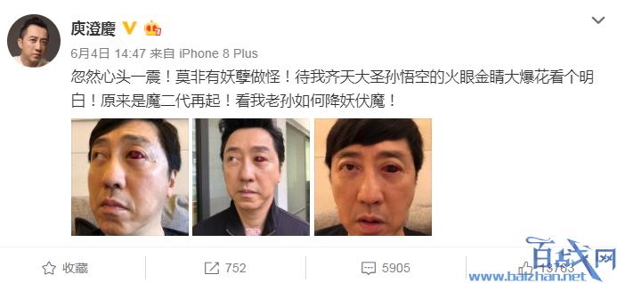 庾澄庆血眼吓懵网友,庾澄庆血眼,哈林庾澄庆